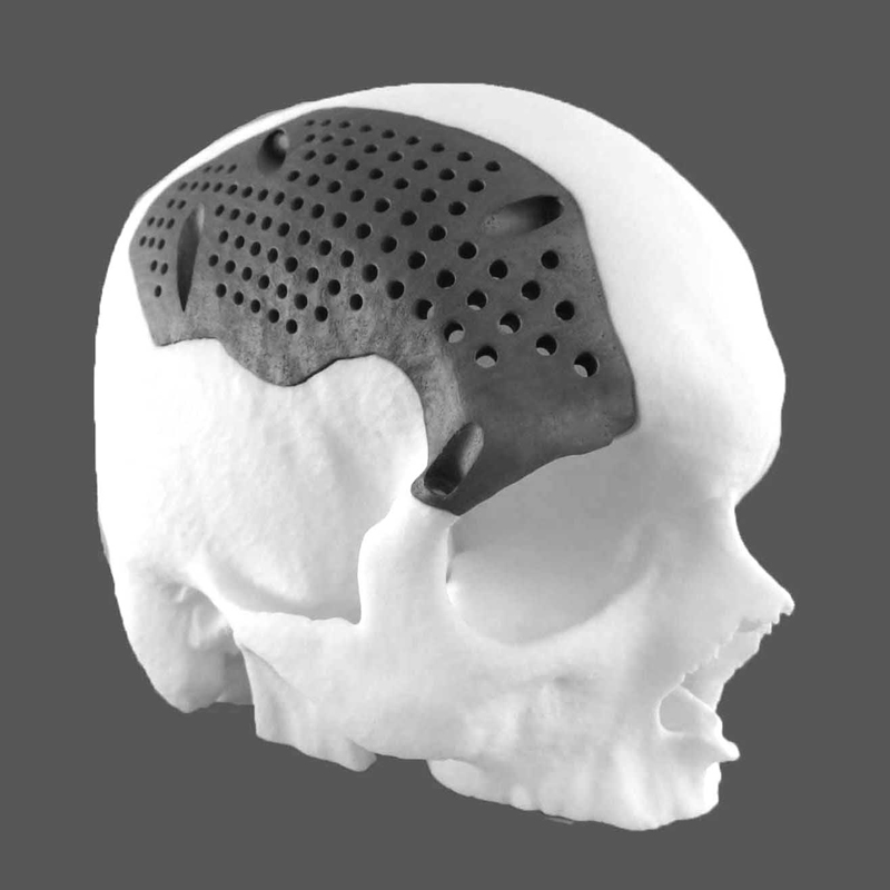 Healthcare medical cranial implant 3D printing